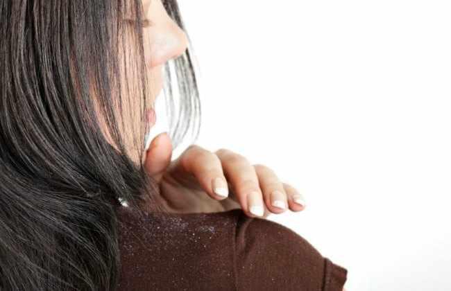 como eliminar la caspa en mujeres