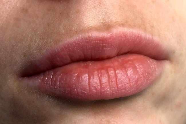 Enfermedades Labiales - Que hacer para controlar el Herpes labial