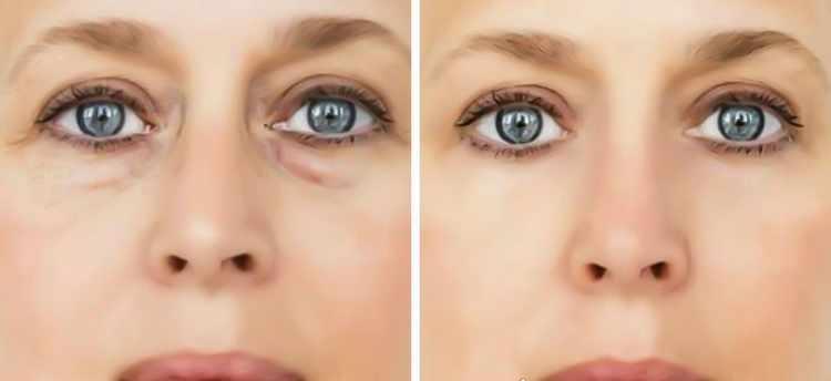 eliminar bolsas ojos sin cirugia